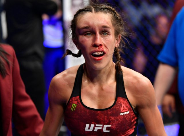 Jedrzejczyk's face ballooned up during her fight with Zhang Weili at UFC 248 (Twitter: @thaydrian)