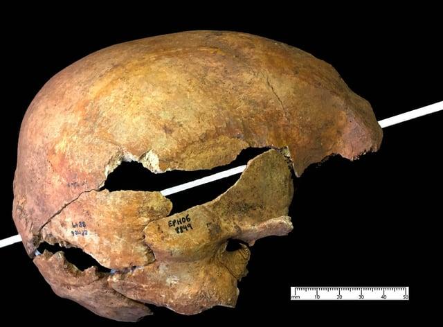 A skull with a piercing arrow