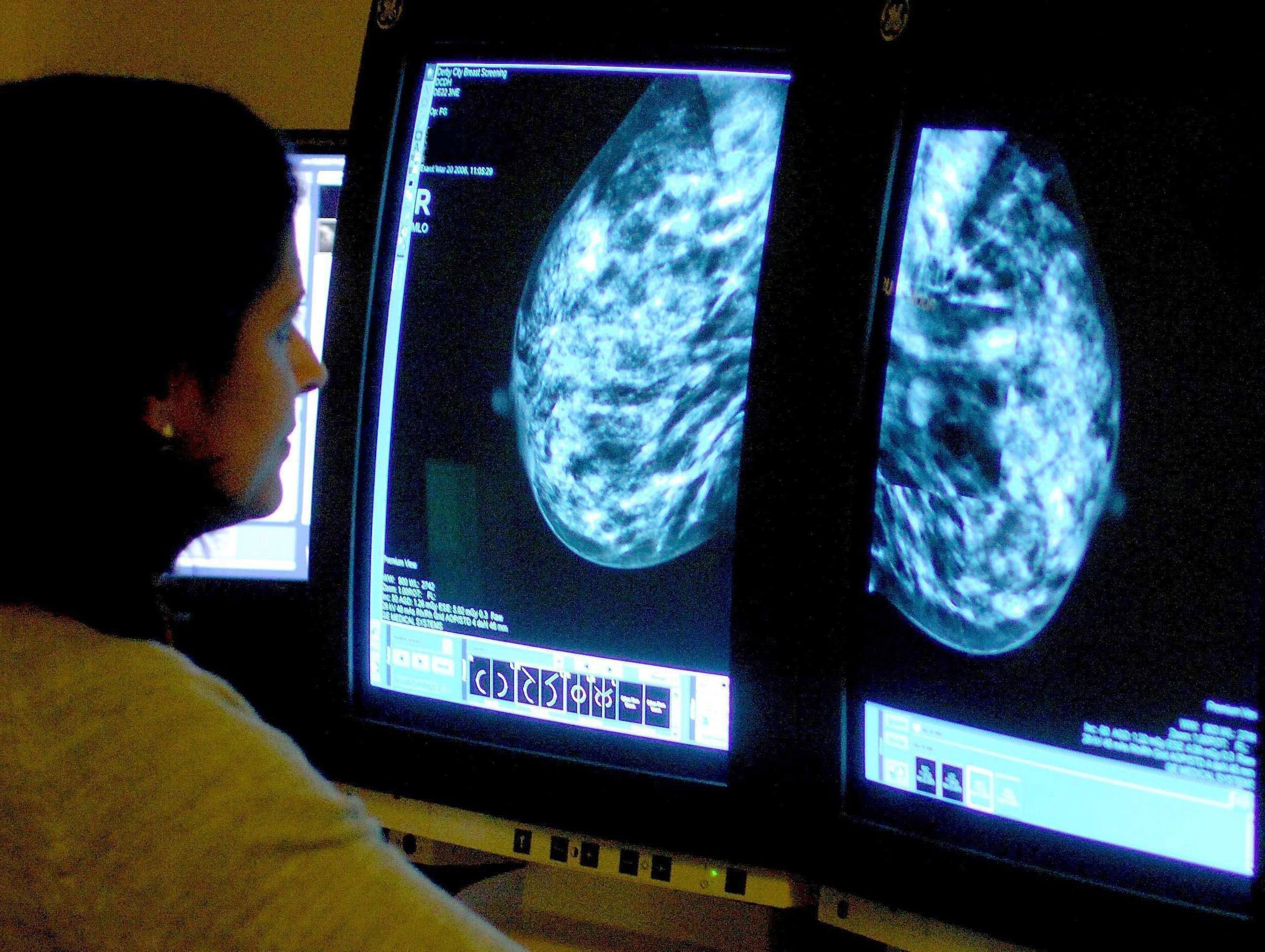 New cancer therapy could benefit hundreds who have no other treatments