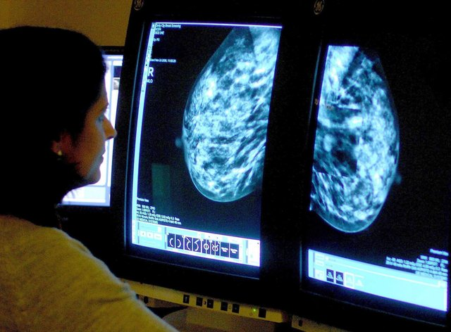 A doctor examines a mammogram