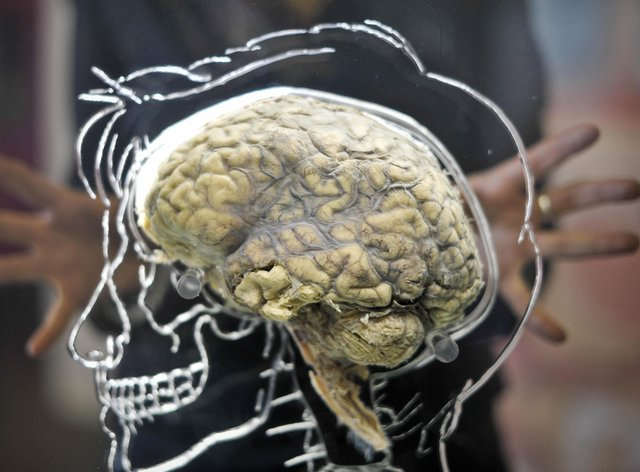 A real human brain suspended in liquid