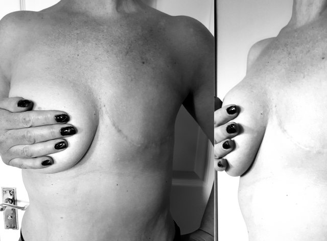 A woman after mastectomy surgery