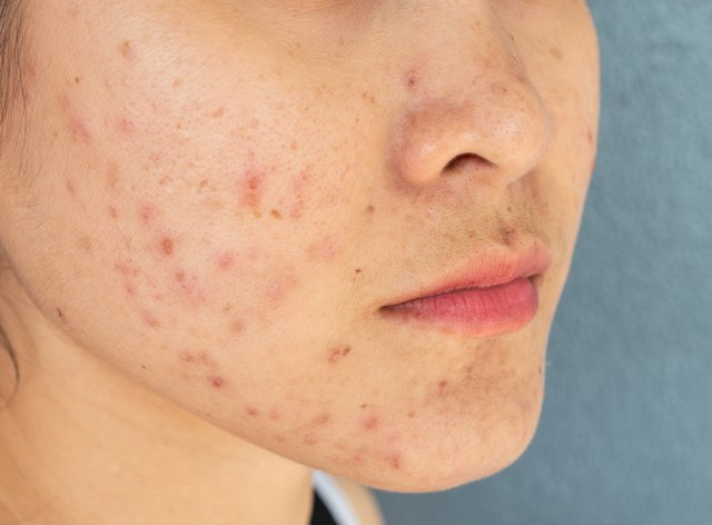 Close-up of woman half face with problems of acne inflammation (Papule and Pustule) on her face.