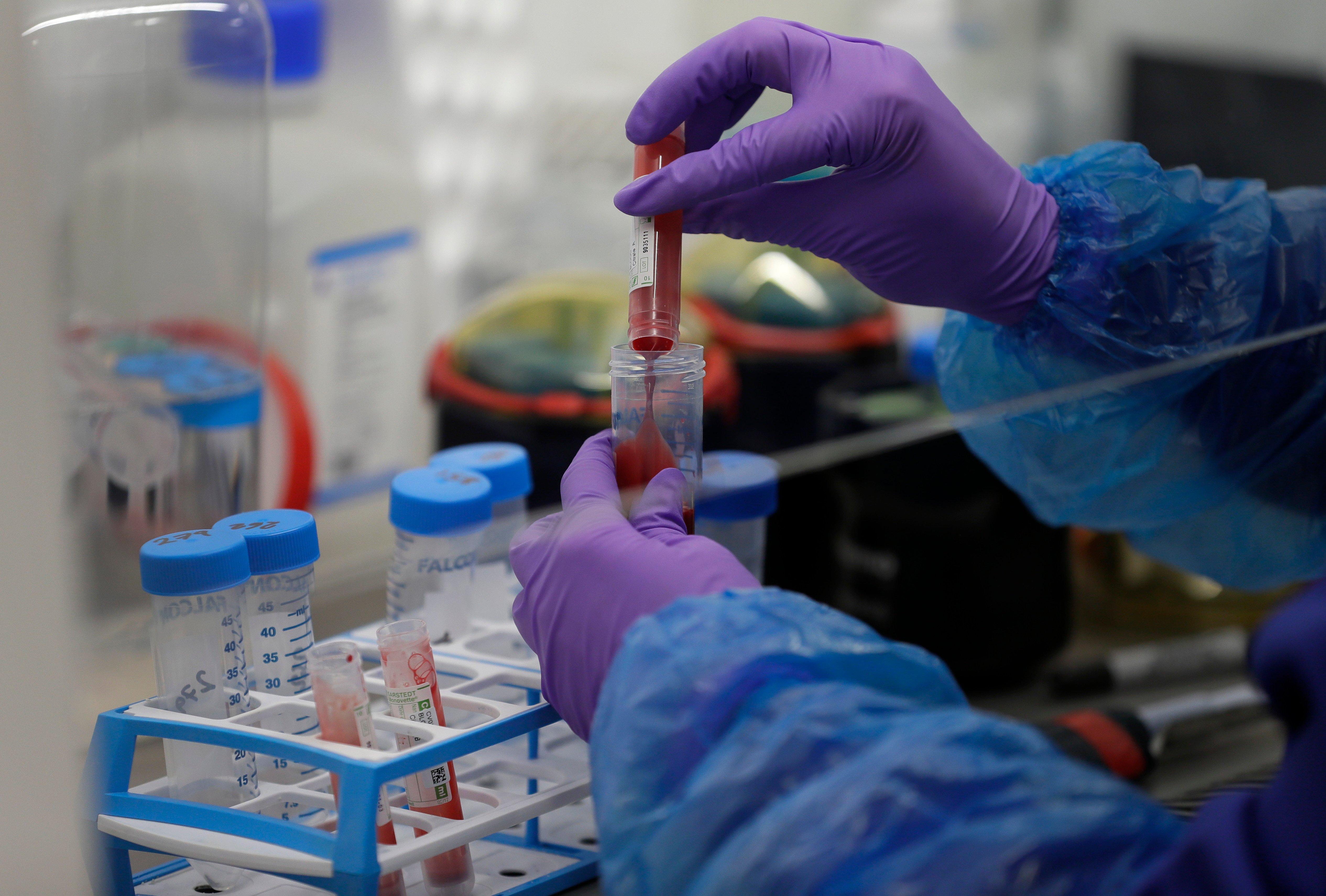 One Brazilian coronavirus variant detected in UK before travel ban – virologist