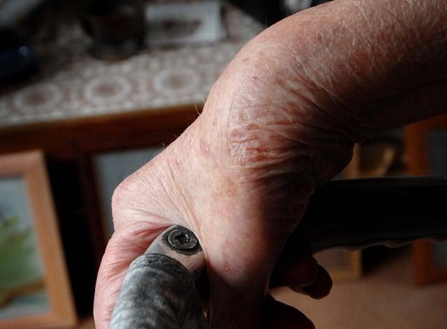 The swollen wrist of a rheumatoid arthritis sufferer
