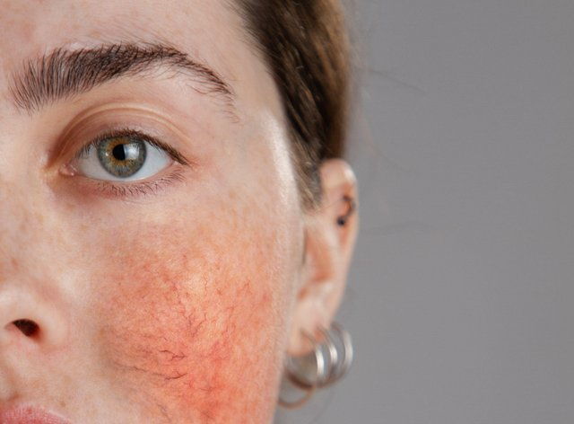 woman with rosacea on her cheeks.