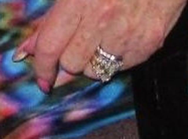 Rings stolen from hospital