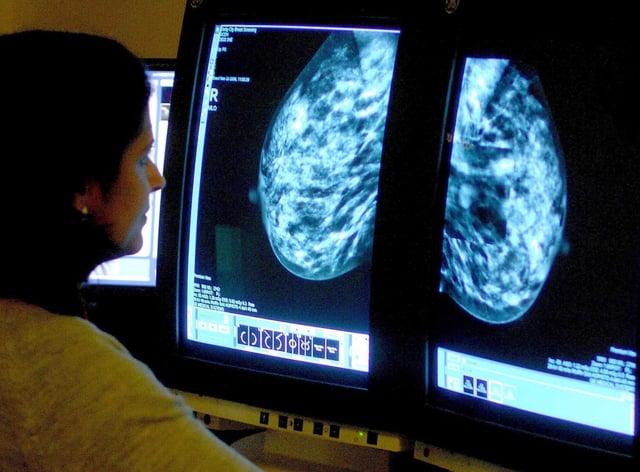 <p>A medical staffer checking a mammogram</p>
