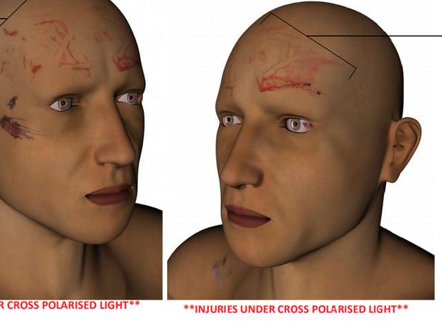 Dalian Atkinson injury map